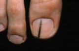 Меланома нігтя: ознаки і лікування