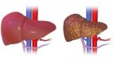 Первинний біліарний цироз печінки: причини, симптоми, діагностика і лікування