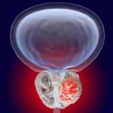 Пухлина простати у чоловіків: види, симптоми і лікування
